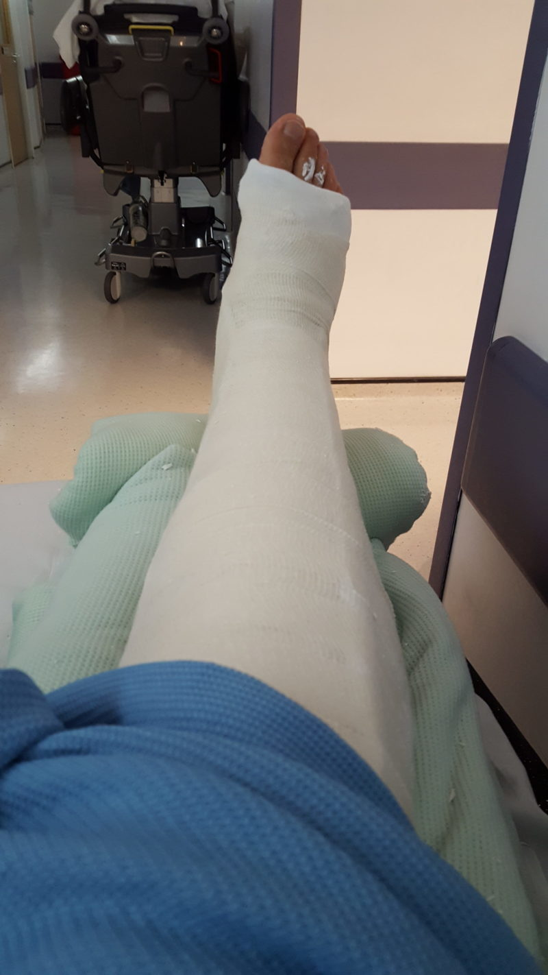 The Day I Broke My Leg Broken Tibia And Fibula With Intramedullary